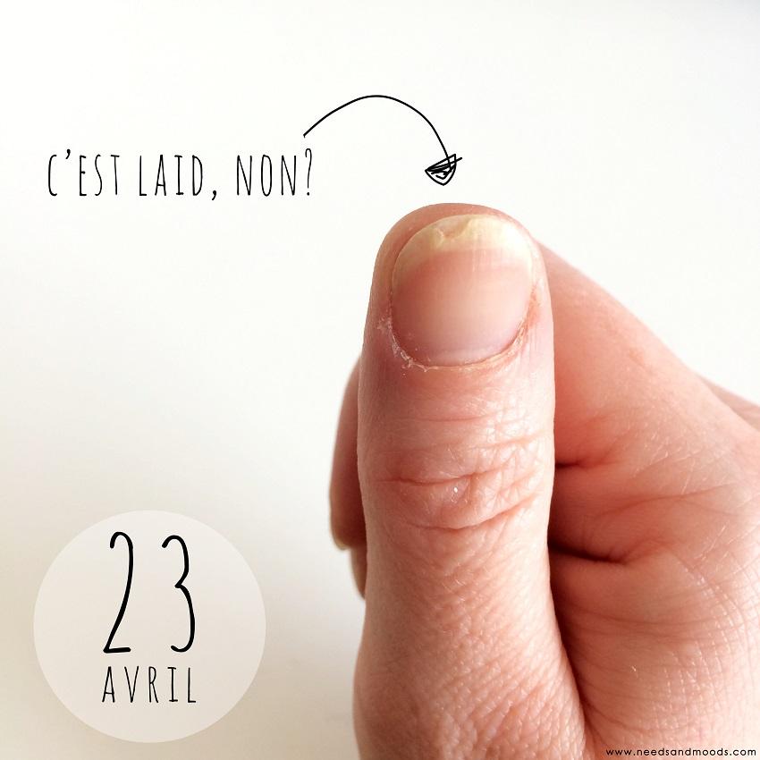 soin réparateur pour ongles dédoublés Vitry
